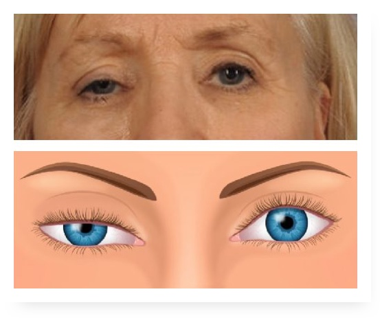 ptosis-drooping-eyelids-in-adults-1024-x-473