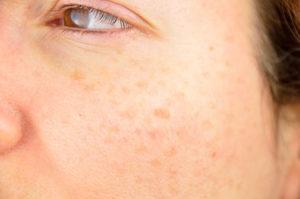 Skin with Dermaplaning florida